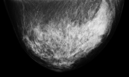 Black and white image of a 2cm diameter ductal carcinoma