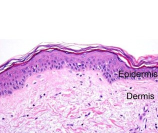 This is a section of lightly keratinized skin. Keratinization protects the underlying epidermis. This section is most likely taken from an area of the body that needs minimal protection, such as the shoulders, arms or legs.